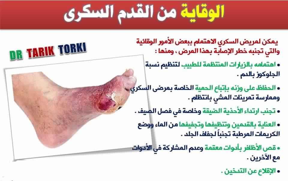 d8bdd8851 خطورة القدم السكري و طرق الوقاية | صباح طنجة | جريدة إلكترونية مغربية